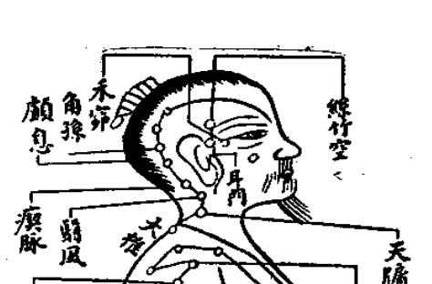 頭痛 今治 玄鍼灸院